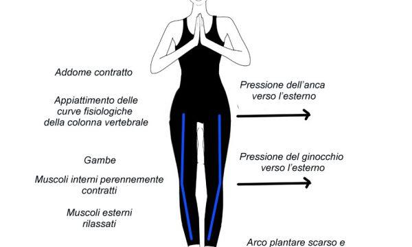 Varismo – Anca, piede, ginocchio, come intervenire?